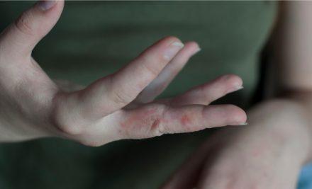 Scabbia: prevenzione naturale in tutte le comunità
