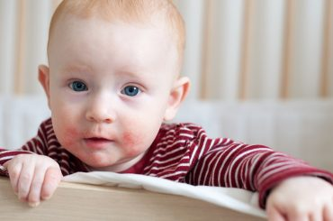 dermatite-atopica-bioderm-biogesan-baby-farmoderm