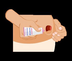 Applicazione di una piccola quantità di crema isodermico sulla cute attorno allo stoma per evitare irritazioni