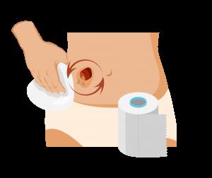 Pulizia della cute peristomale con un panno di carta