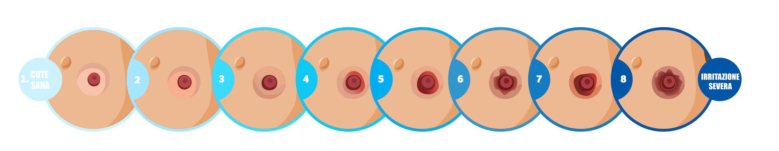 Alterazione della pelle peristomale in fasi
