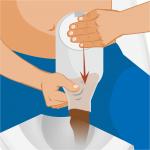 persona che effettua una leggera pressione sulla sacca per stomia mentre la svuota