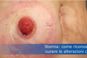 Stomia: come riconoscere e curare le alterazioni cutanee