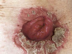 psoriasis final