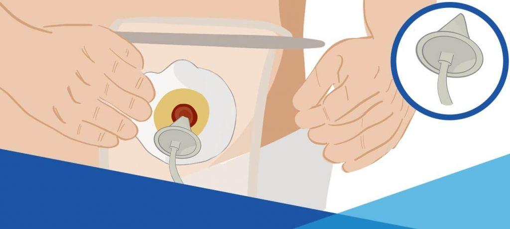 Passaggio 2: prepara lo stoma e inserisci il cono